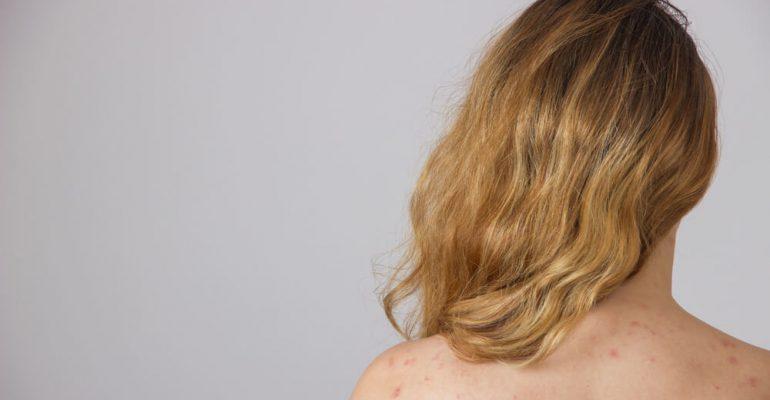 Hipolabor explica: o que as manchas vermelhas na pele podem significar