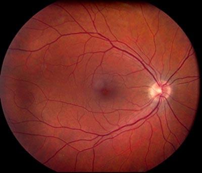 toxoplasmoza oculara)