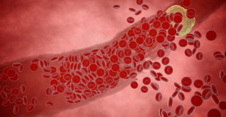Entenda quais são as diferenças entre o colesterol bom e ruim